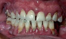 severe gum disease treatment