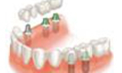 implant retained crowns and bridges
