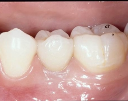 implant crown clinical photo