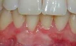 gingival graft with some root coverage